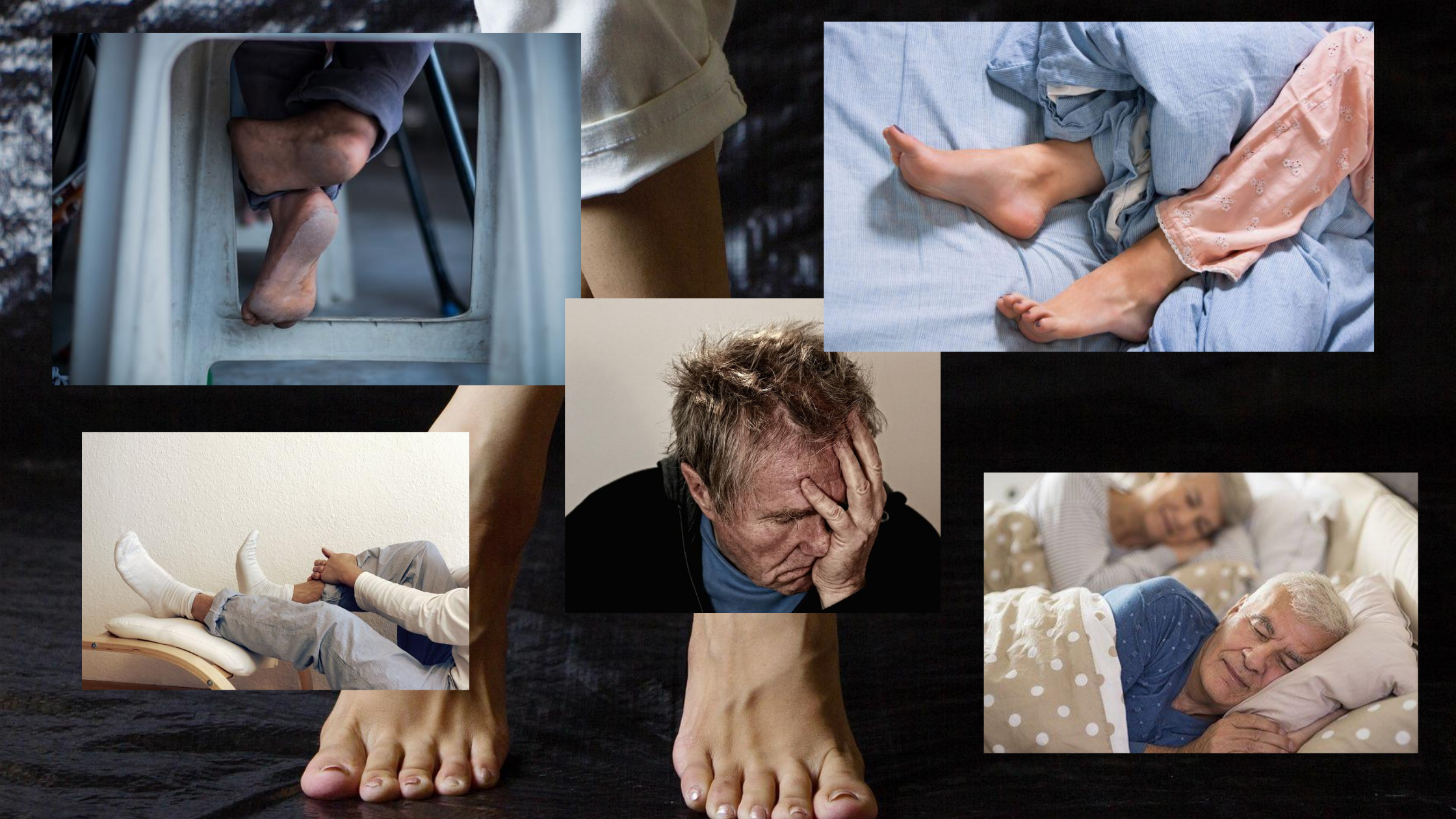 Restless Leg Syndrome Homeopathy Study
